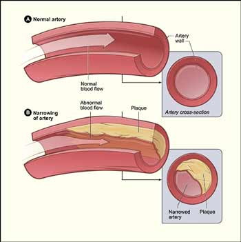 cholesterol_arteries